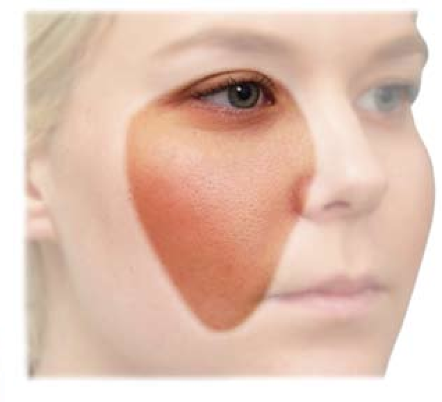 Surgical anatomy of the midcheek: facial layers, spaces, and the ...