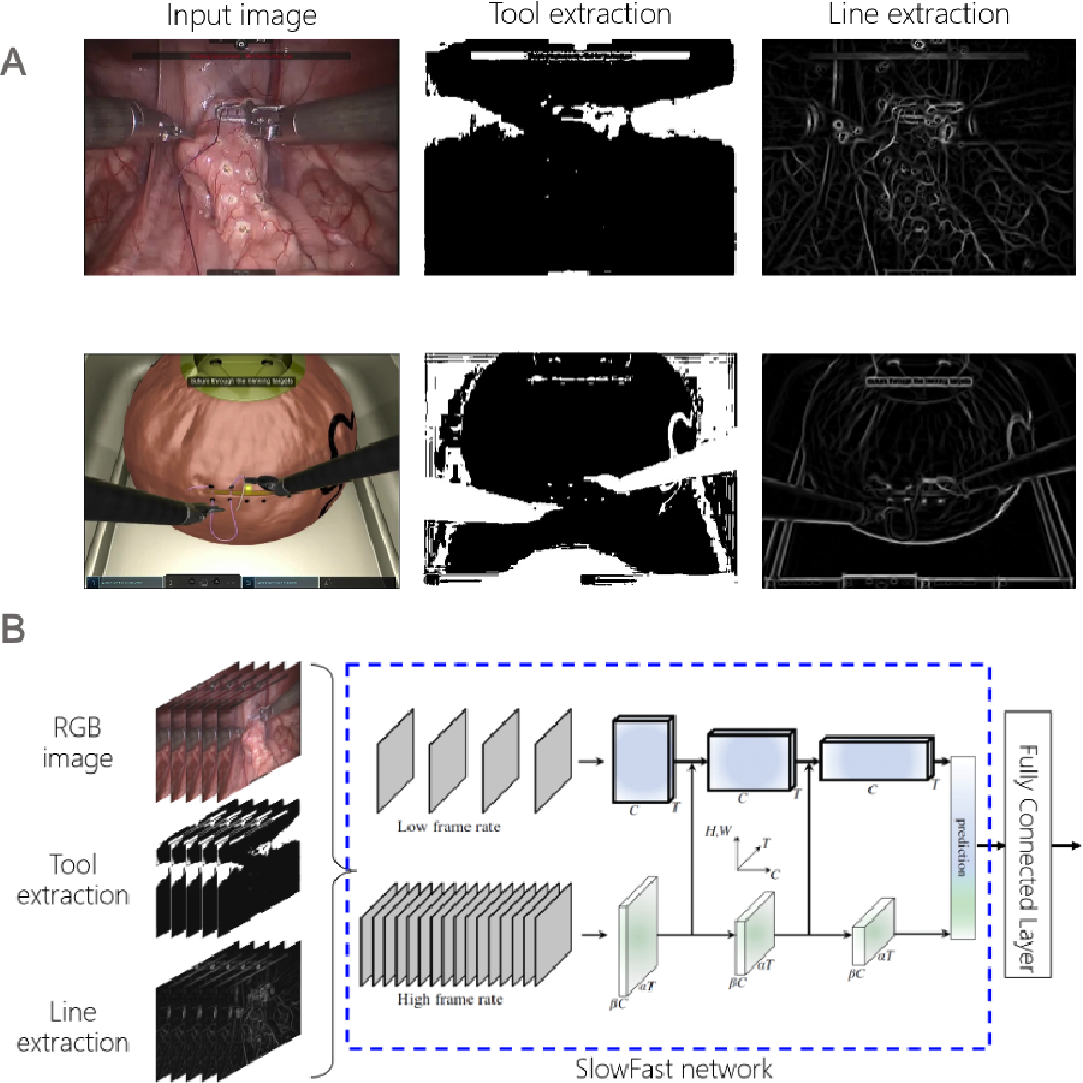 Figure 4 for Surgical Visual Domain Adaptation: Results from the MICCAI 2020 SurgVisDom Challenge