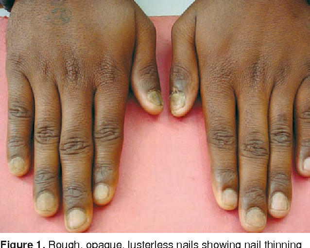 Figure 1 from TWENTY NAIL DYSTROPHY ASSOCIATED WITH LICHEN PLANUS IN ...