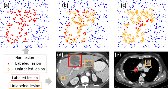Figure 1 for Learning from Multiple Datasets with Heterogeneous and Partial Labels for Universal Lesion Detection in CT