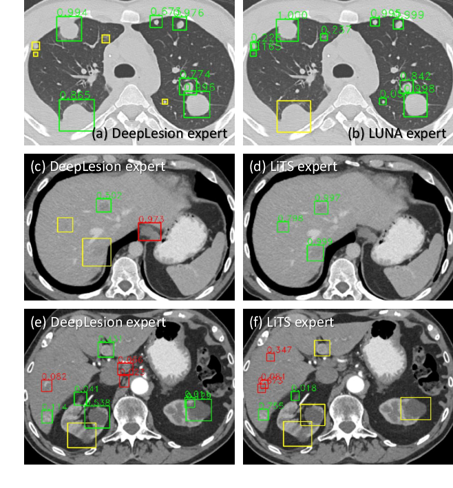 Figure 3 for Learning from Multiple Datasets with Heterogeneous and Partial Labels for Universal Lesion Detection in CT