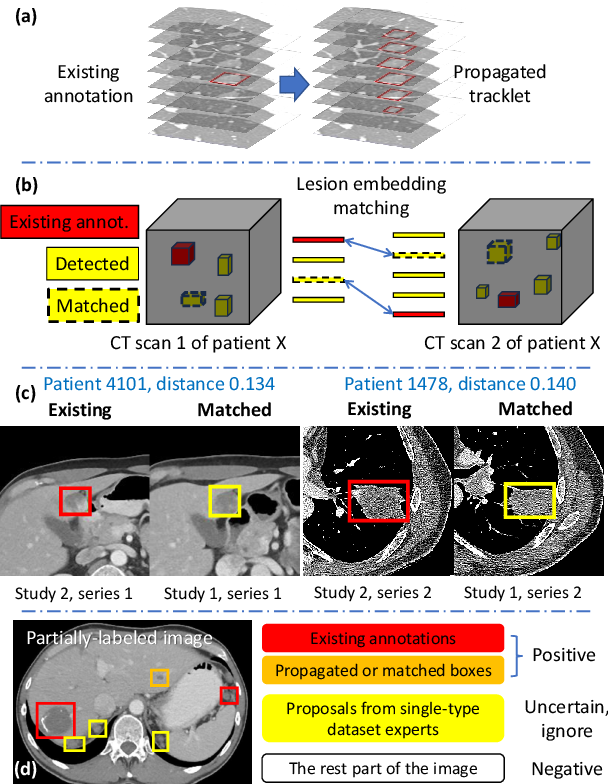 Figure 4 for Learning from Multiple Datasets with Heterogeneous and Partial Labels for Universal Lesion Detection in CT