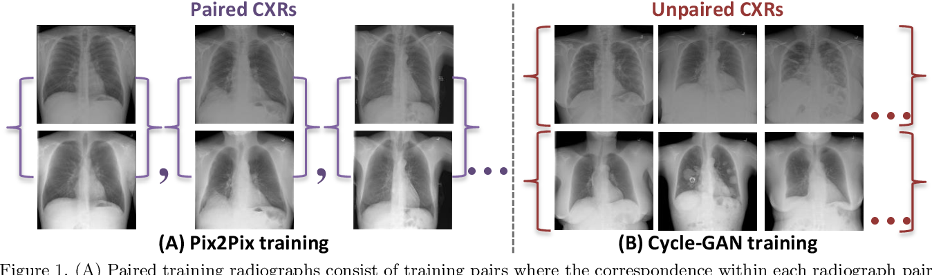 Figure 1 for Bone Suppression on Chest Radiographs With Adversarial Learning