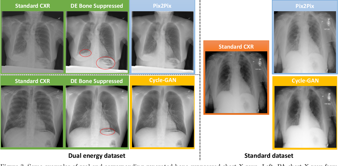 Figure 4 for Bone Suppression on Chest Radiographs With Adversarial Learning