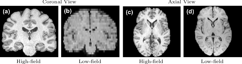 Figure 1 for Deep Learning for Low-Field to High-Field MR: Image Quality Transfer with Probabilistic Decimation Simulator