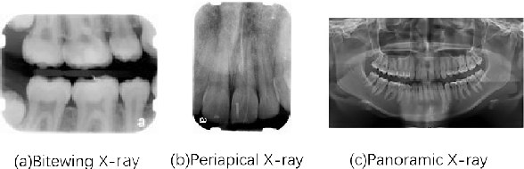 Figure 1 for An Adaptive Enhancement Based Hybrid CNN Model for Digital Dental X-ray Positions Classification