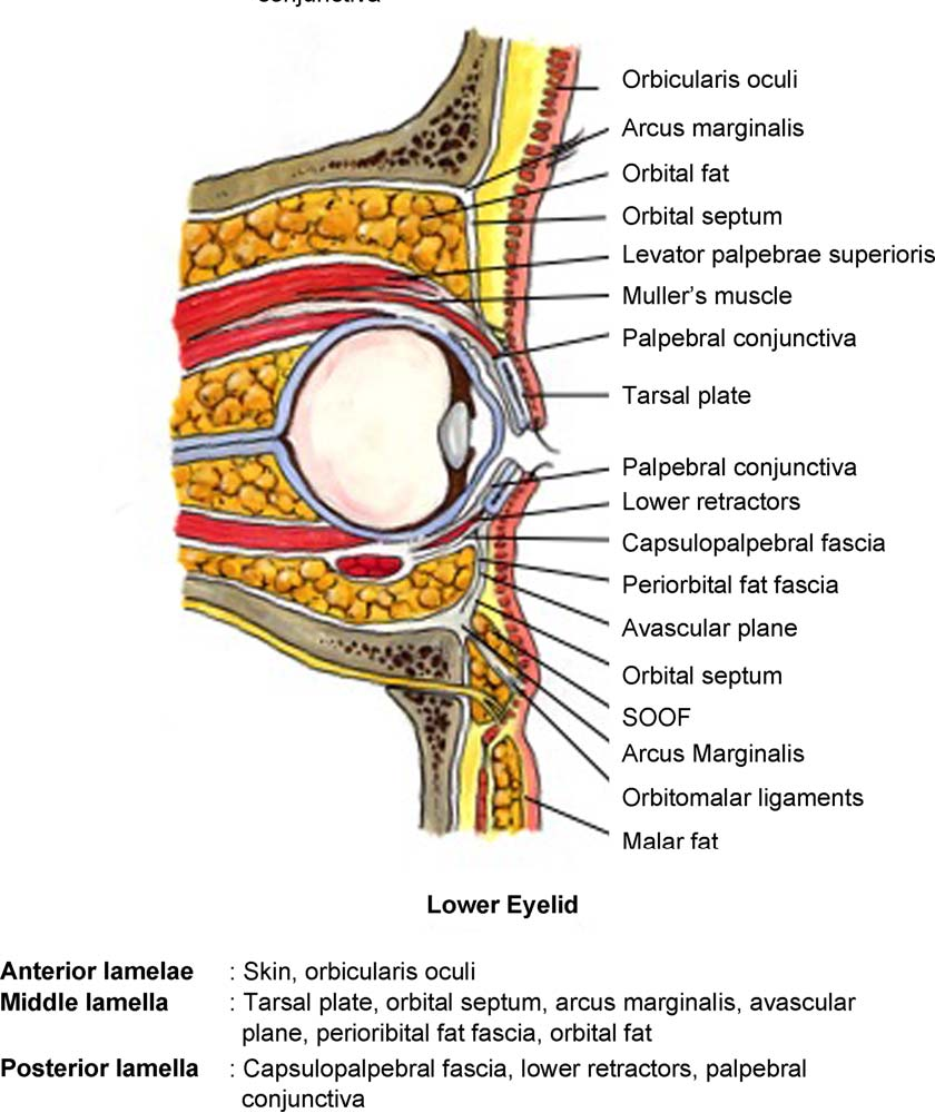 Figure 2 from Aesthetic blepharoplasty. - Semantic Scholar