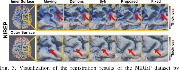 Figure 3 for Deep Morphological Simplification Network (MS-Net) for Guided Registration of Brain Magnetic Resonance Images