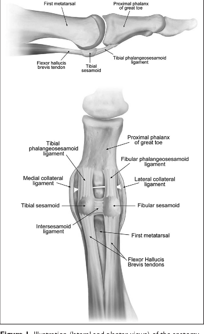 Radiographic evaluation of plantar plate injury: an in vitro ...