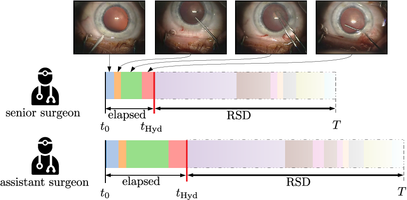 Figure 1 for CataNet: Predicting remaining cataract surgery duration