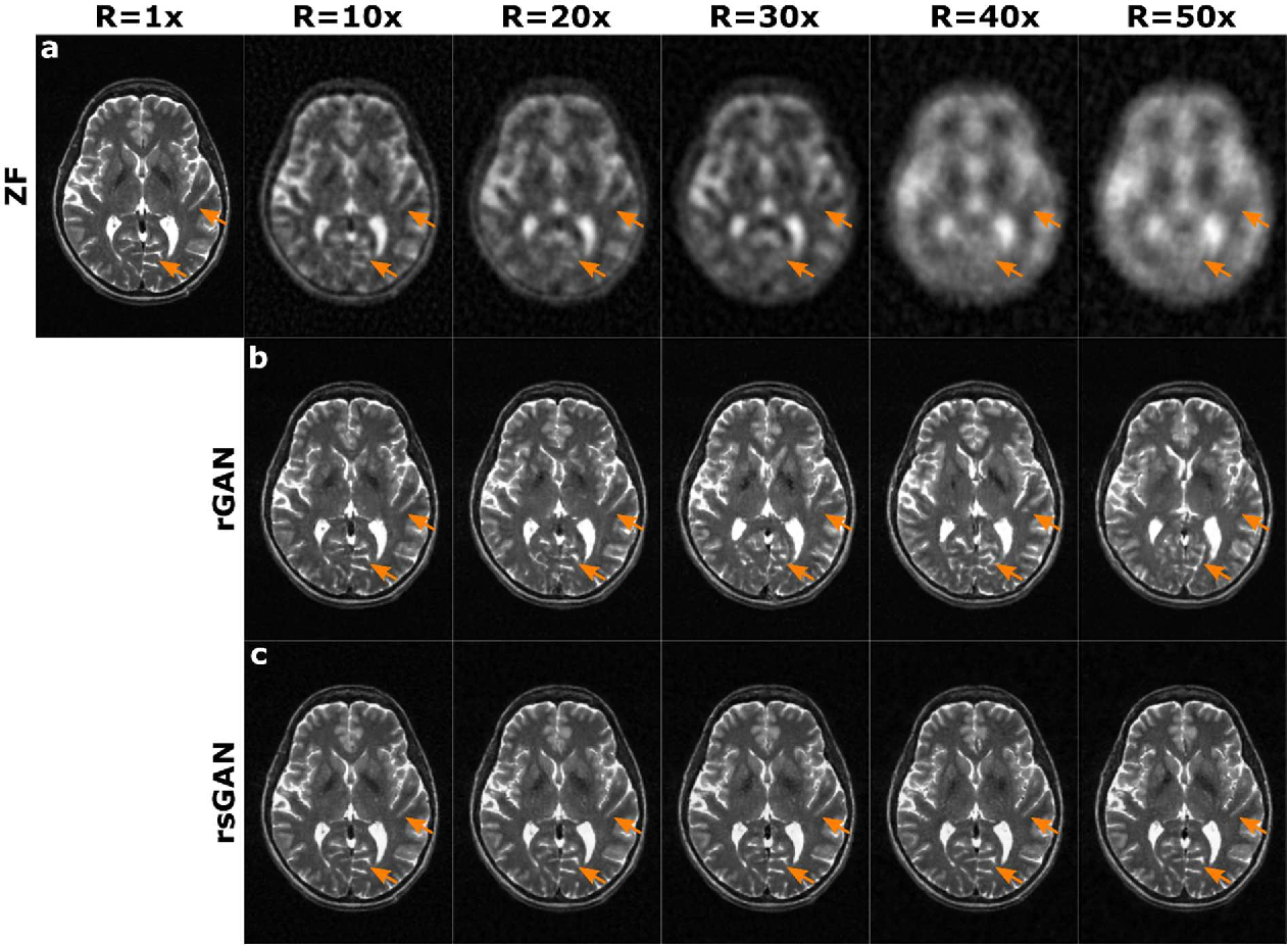 Figure 3 for Synergistic Reconstruction and Synthesis via Generative Adversarial Networks for Accelerated Multi-Contrast MRI