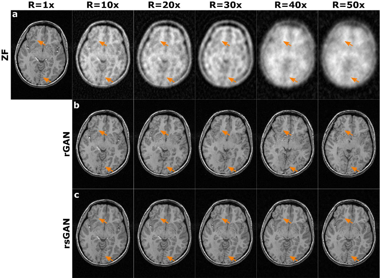 Figure 4 for Synergistic Reconstruction and Synthesis via Generative Adversarial Networks for Accelerated Multi-Contrast MRI