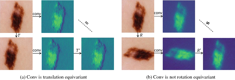 Figure 1 for Deeply Supervised Rotation Equivariant Network for Lesion Segmentation in Dermoscopy Images
