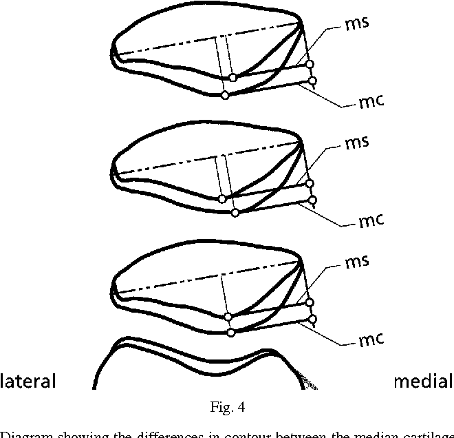 Anatomy and surface geometry of the patellofemoral joint in the ...