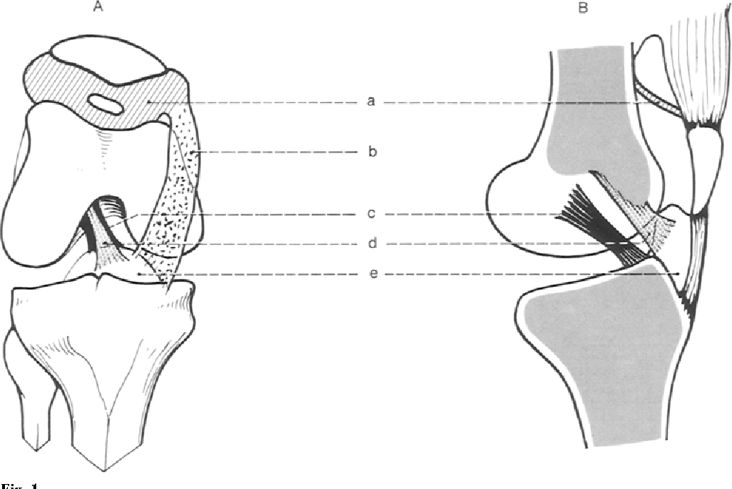 The synovial folds of the knee joint: Anatomical study - Semantic ...