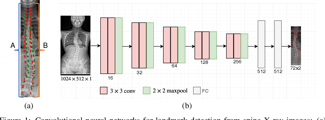 Figure 1 for Bipartite Distance for Shape-Aware Landmark Detection in Spinal X-Ray Images