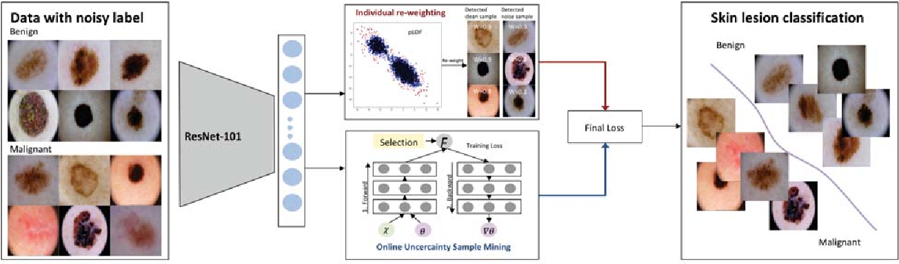 Figure 3 for Robust Learning at Noisy Labeled Medical Images: Applied to Skin Lesion Classification