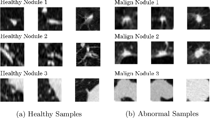 Figure 1 for Anomaly Detection for imbalanced datasets with Deep Generative Models