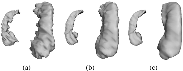 Figure 1 for Shape-Aware Organ Segmentation by Predicting Signed Distance Maps