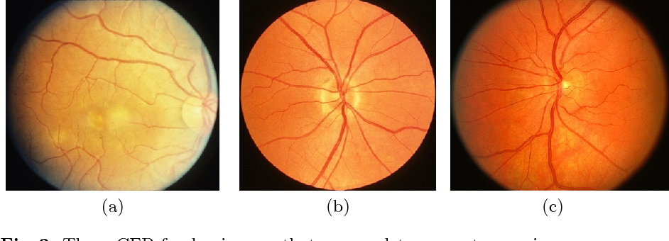 Figure 3 for Synthesizing New Retinal Symptom Images by Multiple Generative Models