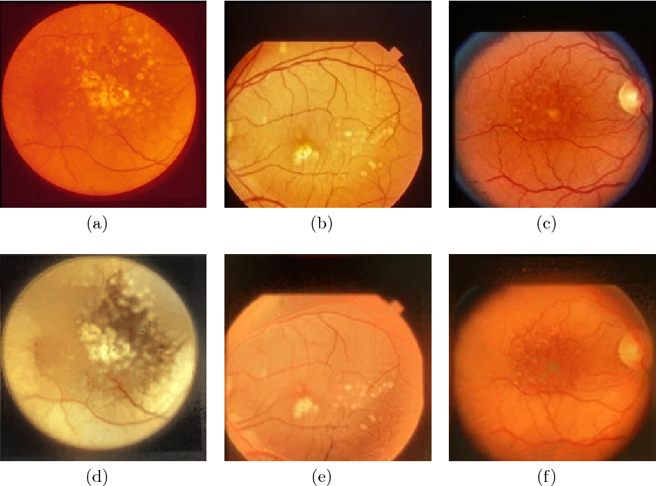 Figure 4 for Synthesizing New Retinal Symptom Images by Multiple Generative Models