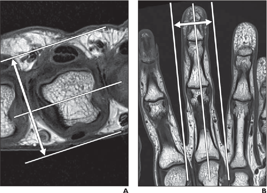High Resolution 3 T Mri Of The Fingers Review Of Anatomy And Common
