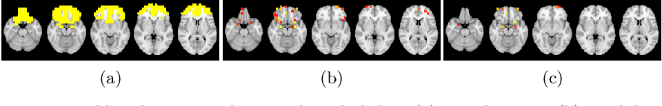 Figure 4 for Prediction of Autism Treatment Response from Baseline fMRI using Random Forests and Tree Bagging
