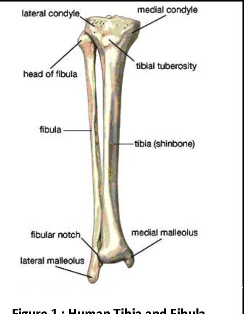 enhanced segmentation method for bone structure and diaphysis