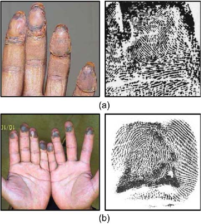 Figure 1 for Altered Fingerprints: Detection and Localization