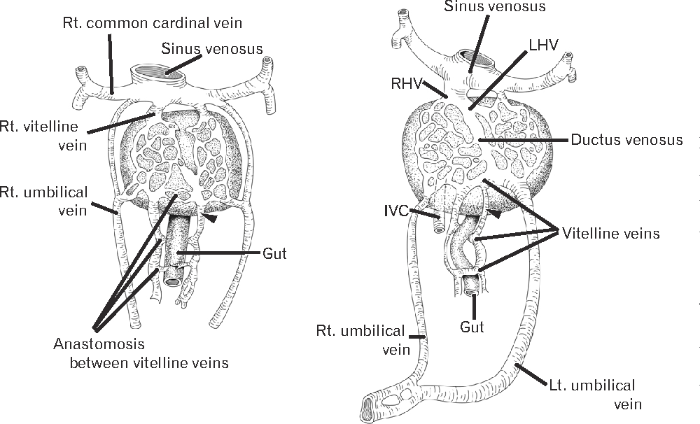 An anomalous portal vein crossing the lesser sac and ending at the ...