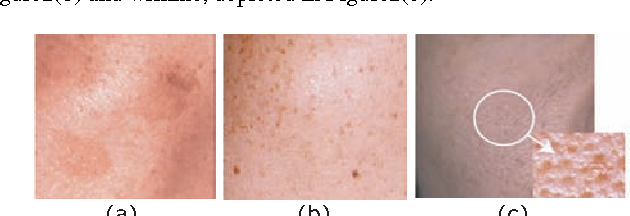 Figure 10 from Skin-Anatomy Based Face Texture Image