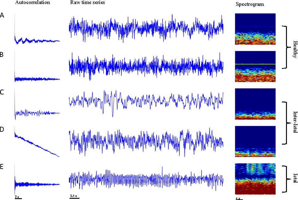 Figure 1 for Deep Recurrent Neural Networks for seizure detection and early seizure detection systems