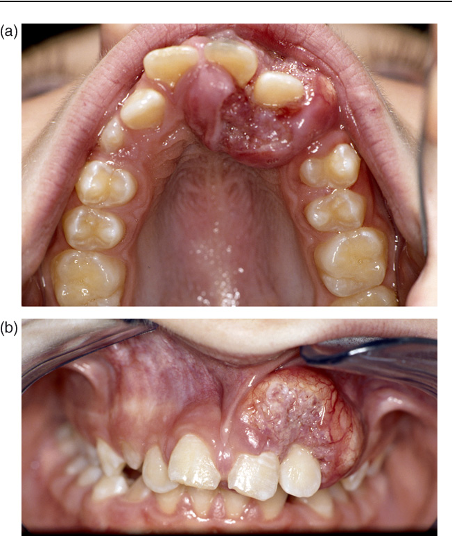 small-photos-squamous-cell-carcinoma-oral