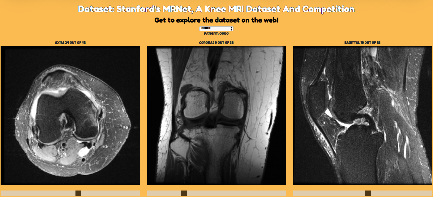 Figure 3 for A Comparative Study of Existing and New Deep Learning Methods for Detecting Knee Injuries using the MRNet Dataset