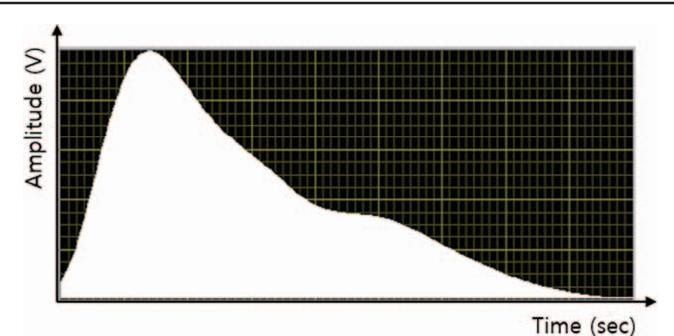 PDF] Change in radial artery pulse wave in stroke hemiplegic