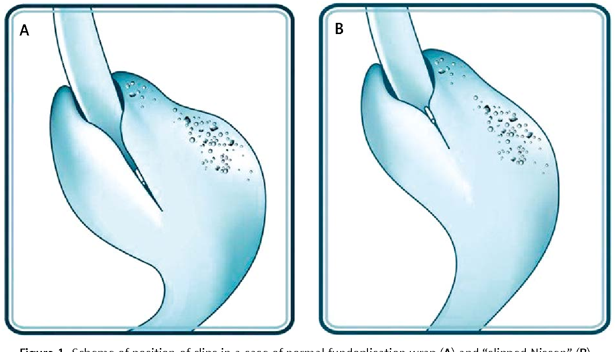 Figure 1 from Endoscopic clipping of the Z-line (CMZL) helps ...