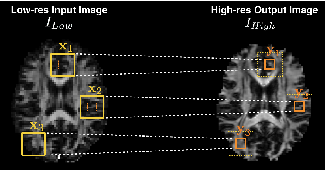 Figure 3 for Uncertainty Quantification in Deep Learning for Safer Neuroimage Enhancement