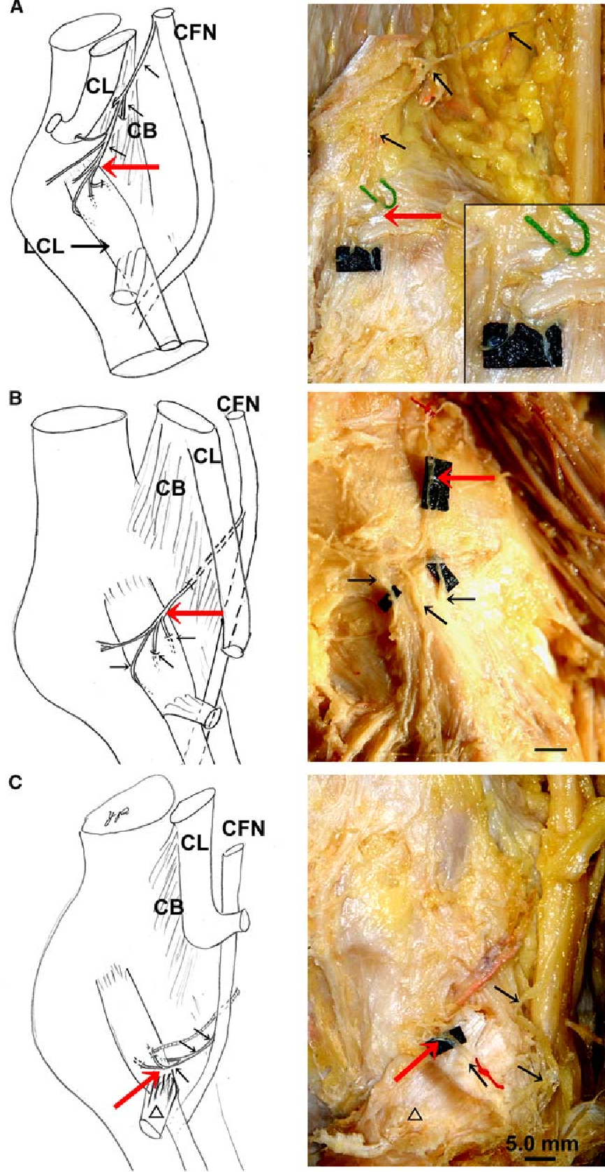 Anatomical Study Of The Lateral Collateral Ligament And Its