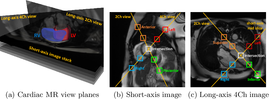 Figure 1 for Self-Supervised Learning for Cardiac MR Image Segmentation by Anatomical Position Prediction