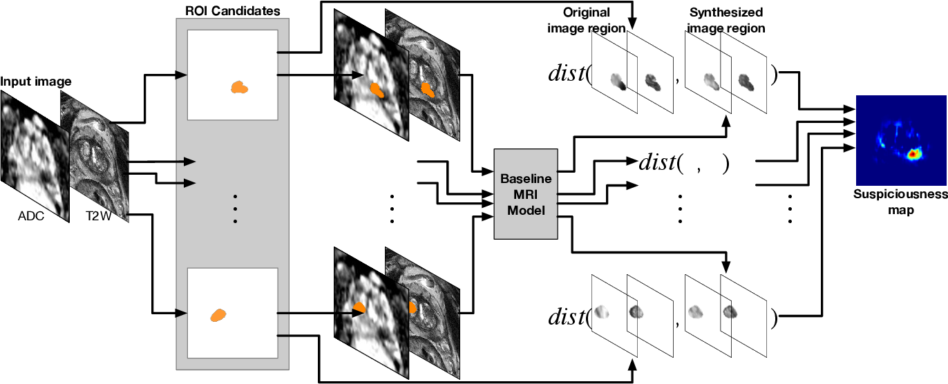 Figure 3 for Prostate cancer inference via weakly-supervised learning using a large collection of negative MRI