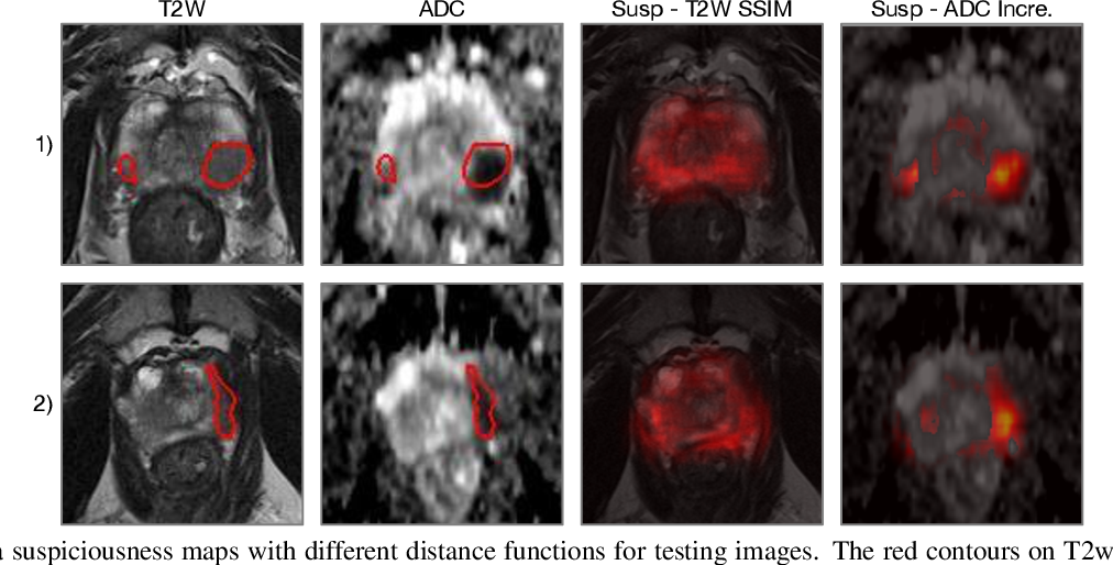 Figure 4 for Prostate cancer inference via weakly-supervised learning using a large collection of negative MRI