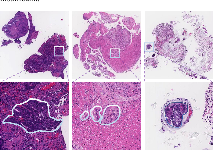 Figure 1 for Multi-level colonoscopy malignant tissue detection with adversarial CAC-UNet