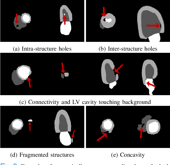 Figure 2 for Cardiac Segmentation with Strong Anatomical Guarantees