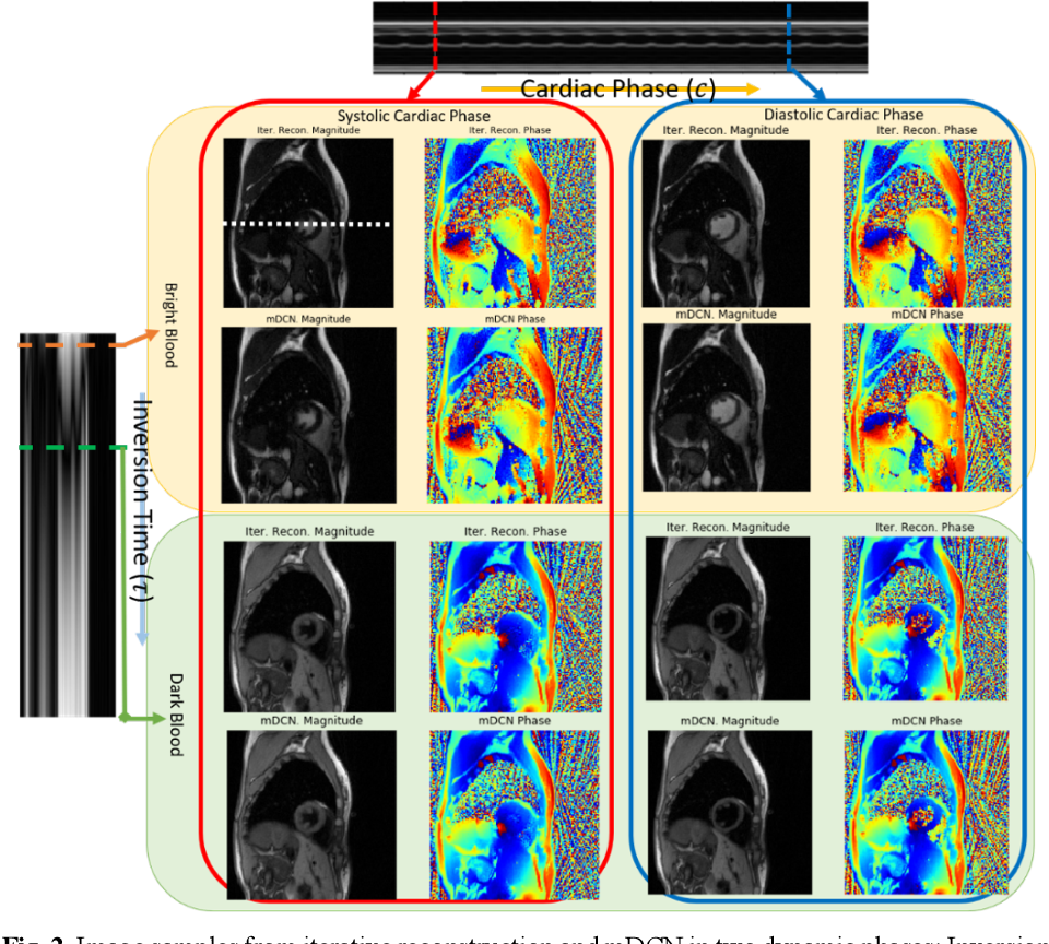 Figure 3 for Deep learning within a priori temporal feature spaces for large-scale dynamic MR image reconstruction: Application to 5-D cardiac MR Multitasking