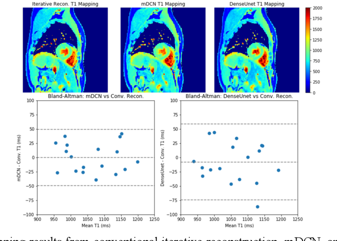 Figure 4 for Deep learning within a priori temporal feature spaces for large-scale dynamic MR image reconstruction: Application to 5-D cardiac MR Multitasking