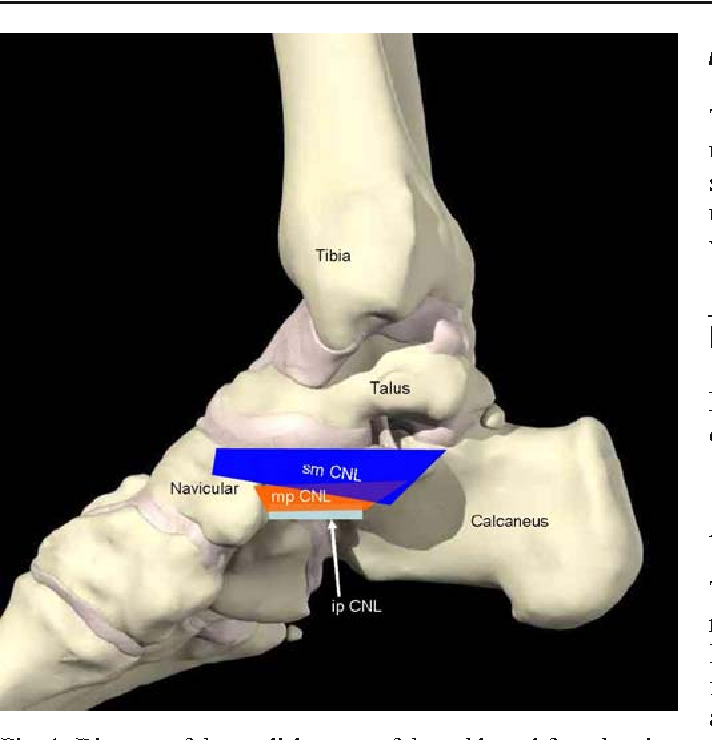 Ultrasound assessment of the spring ligament complex - Semantic Scholar