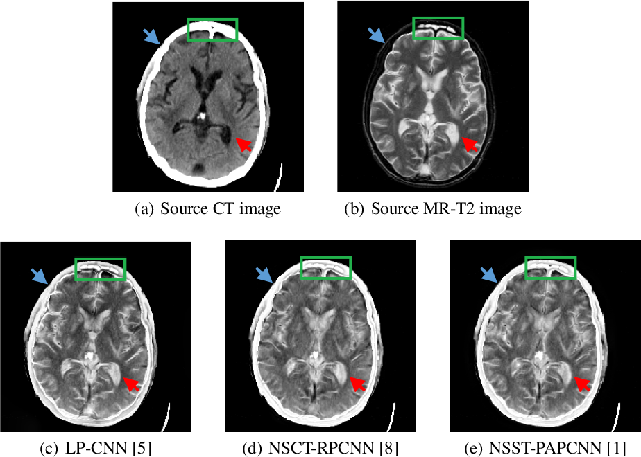 Figure 1 for A Semantic-based Medical Image Fusion Approach