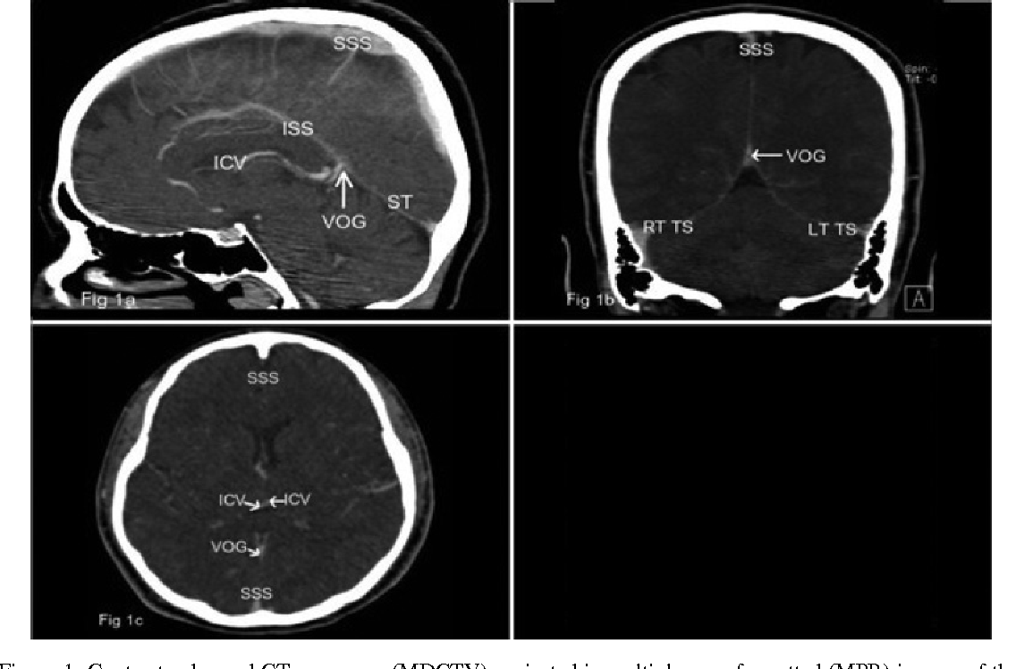 Figure 1 from Cerebral venous sinus thrombosis : Comparison of ...