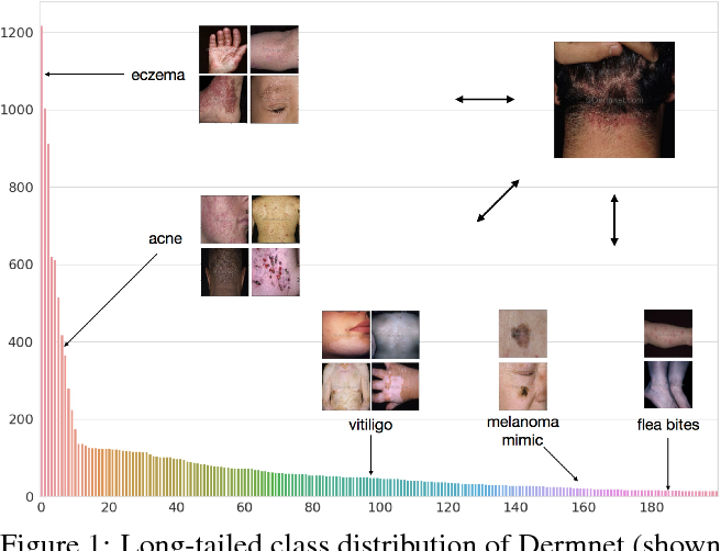 Figure 1 for Prototypical Clustering Networks for Dermatological Disease Diagnosis