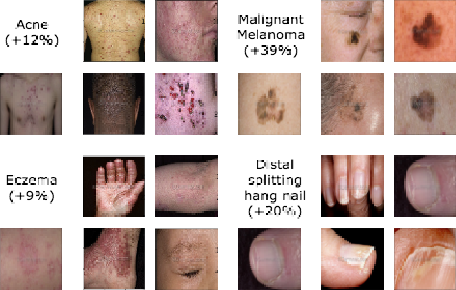 Figure 3 for Prototypical Clustering Networks for Dermatological Disease Diagnosis